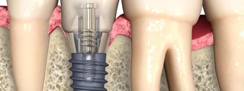 Implanty stomatologia
